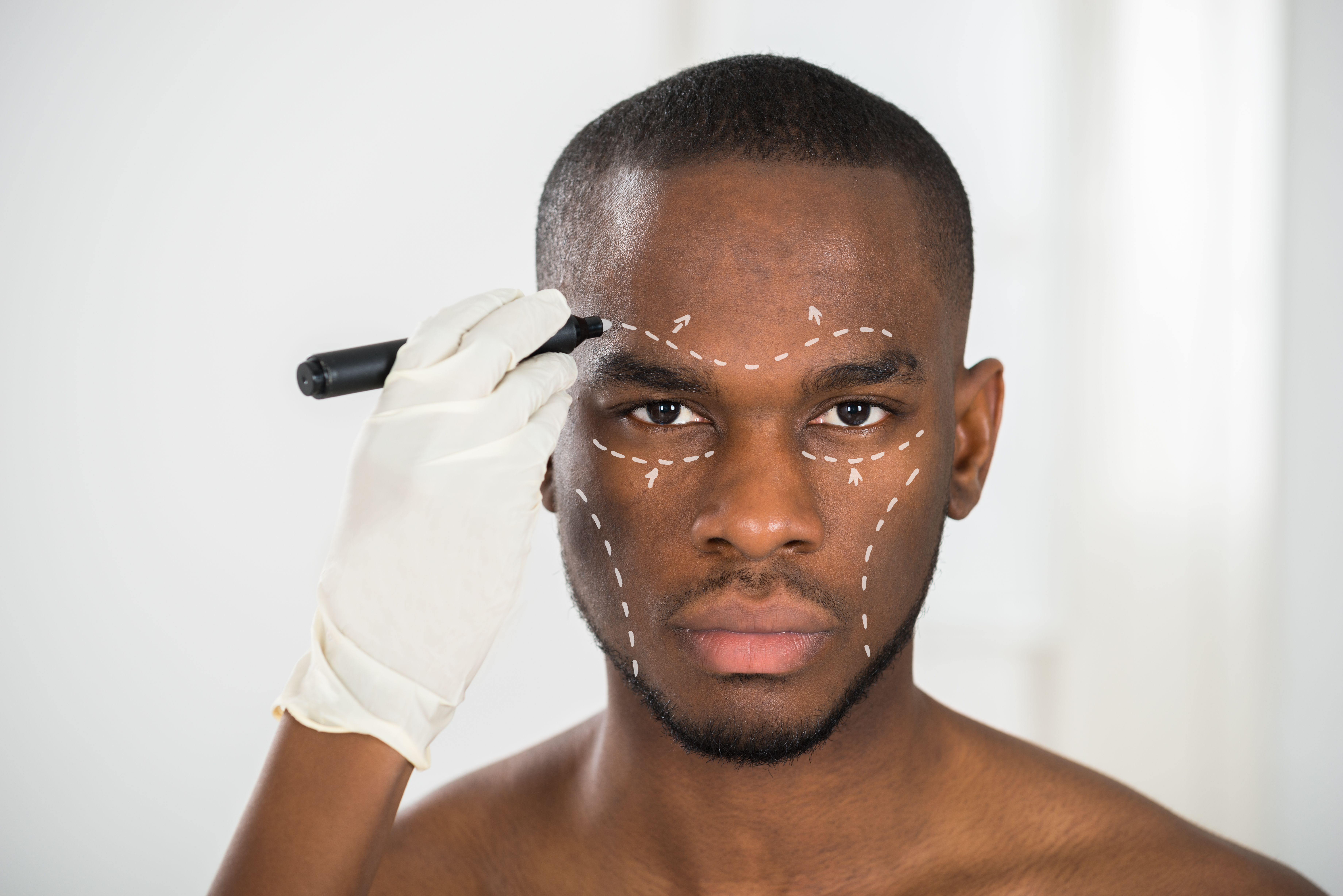 correction lines on man's face